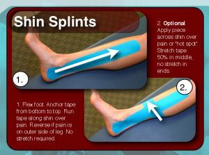Sporttape | Voordelen en ervaring met de sporttape voor enkel, knie en meer!